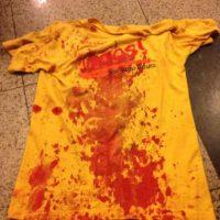 Nota de repúdio à violência policial no DF e em solidariedade ao militante Igor Luz