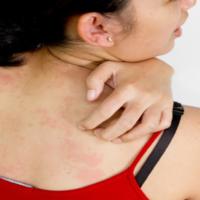 Surto de Zika vírus e microcefalia: as mulheres não devem ser responsabilizadas!