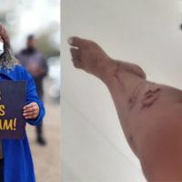 RS: Polícia Militar invade casa e agride ativista dos direitos humanos